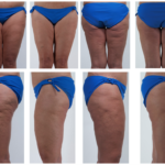 fasciablaster-results-clinical-study-fascia-7